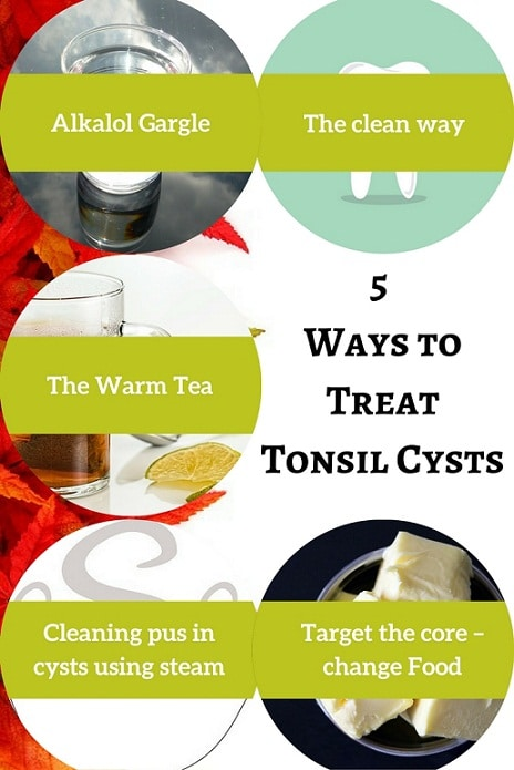 5 ways to treat tonsil cysts - A complete guide for tonsil cysts