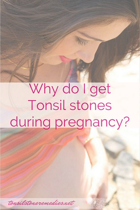 Why Do I get Tonsil stones during Pregnancy..Why am I facing a number of throat problems and postnasal drip during pregnancy? Know the complete truth about this here at http://tonsilstoneremedies.net/5936/pregnancy-tonsil-stones-get-rid-of-during-pregnant