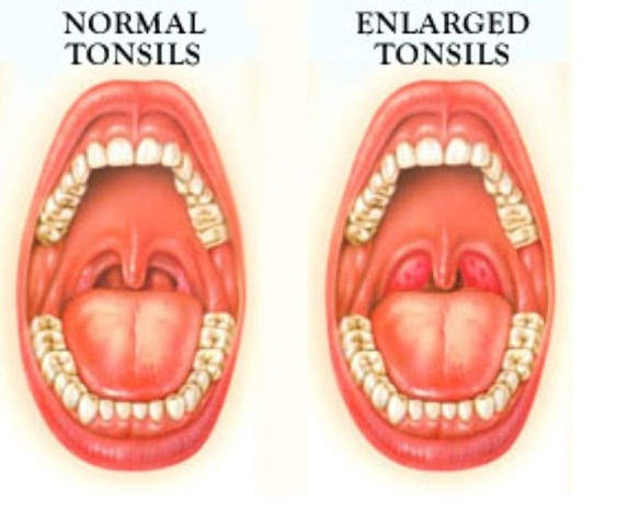 normal vs enlarged tonsils that cause tonsil stones sickness