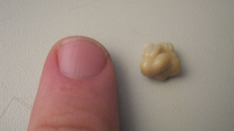 tonsil stone swallowed