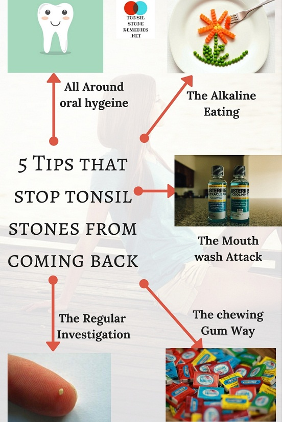 5 Tips that stop tonsil stones from coming back