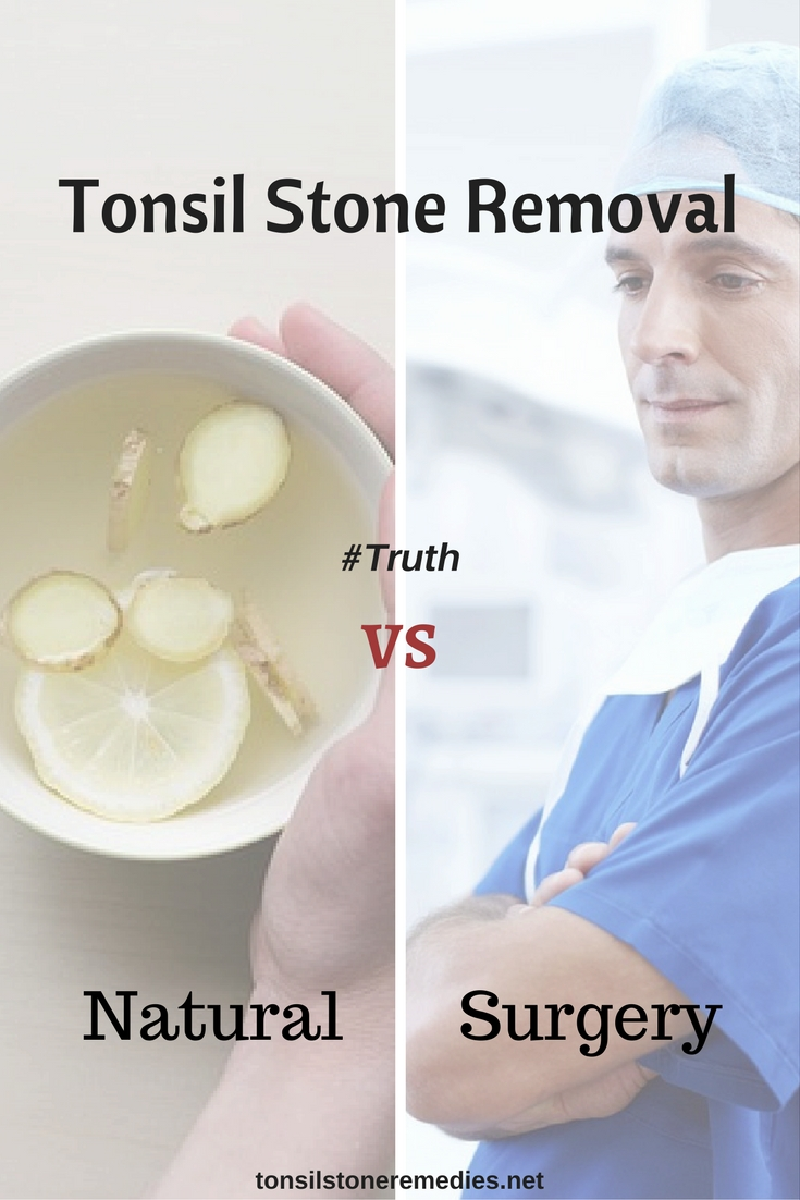 Tonsil Stone Removal truths natural vs surgery