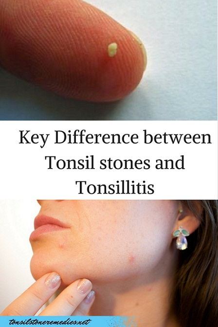 Do you know the Key Difference between tonsil stones and tonsillitis