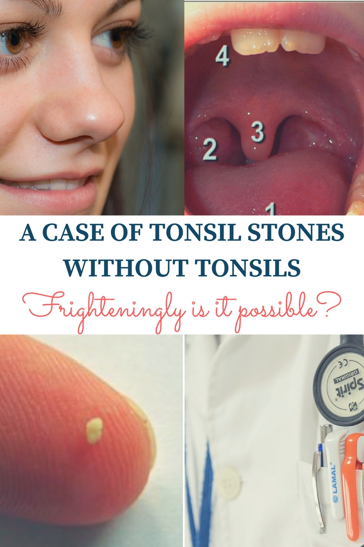 A case of tonsil stones without tonsils.. Is it possible?
