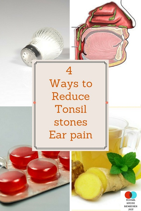 4 Ways to Reduce Tonsil stones ear pain