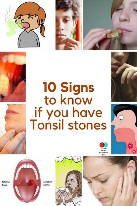 How do you know if you have Tonsil stones? The 10 Signs