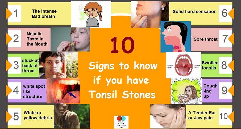 10 signs to know if you have tonsil stones