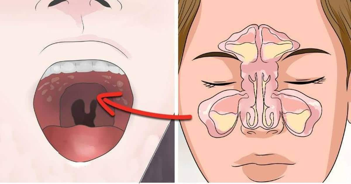How to get rid of Tonsil stones? 5 Proven ways you Must Try -