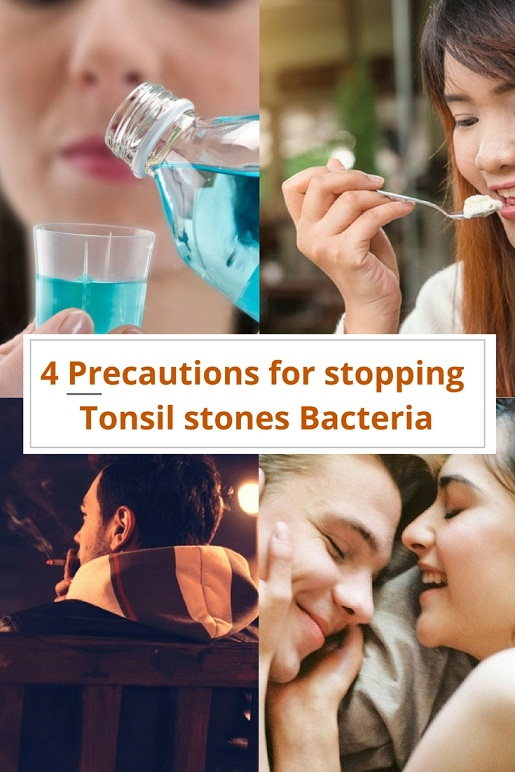 Are Tonsil stones contagious? Also what about tonsil stones bacteria?