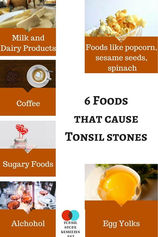 6 Foods that cause Tonsil stones – Here is the List you must avoid