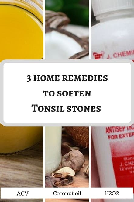 Are Tonsil stones hard or soft when you touch them?