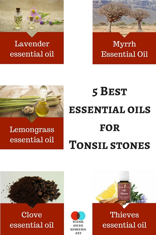 5 Best essential oils for Tonsil stones: How to use them?