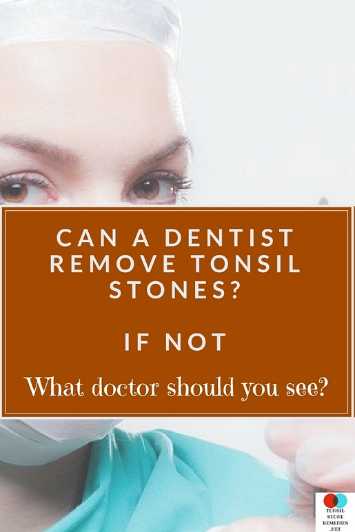 Can a Dentist remove Tonsil stones? If not what doctor should you see?