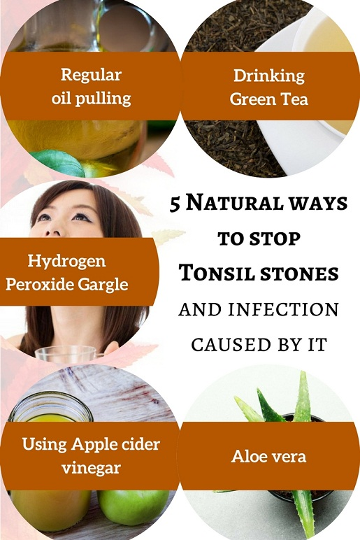 Can Tonsil stones cause infection? 5 Natural ways to stop it