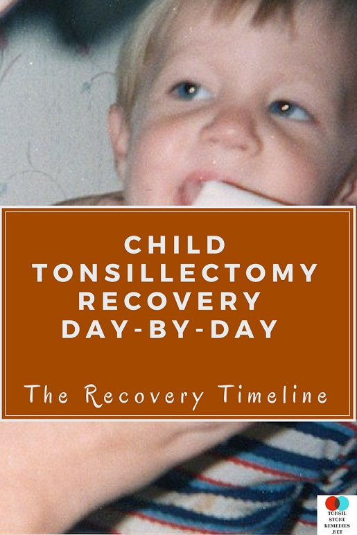 Child Tonsillectomy recovery Day by Day: The Recovery Timeline