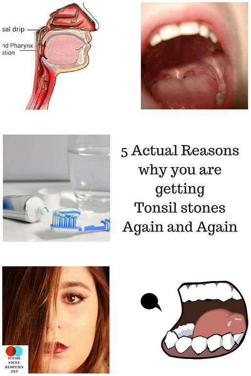 """Why do I keep getting Tonsil stones?"" Here are the 5 Actual reasons"