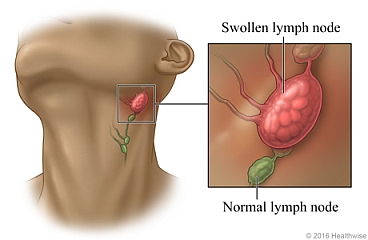 swollen lymph nodes causing one tonsil to look bigger