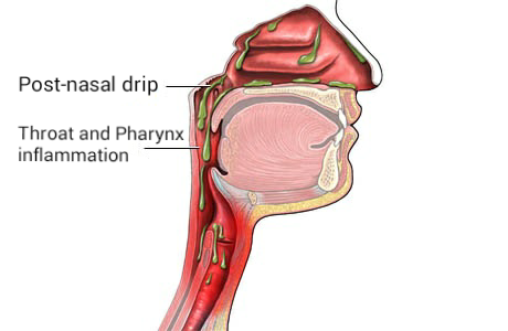 post nasal drip and recurring tonsil stones