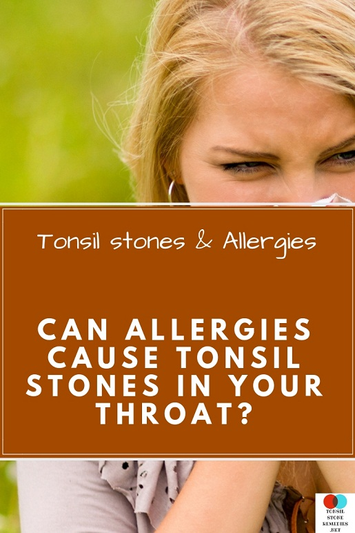 Tonsil stones & Allergies: Can allergies cause Tonsil stones in your throat?