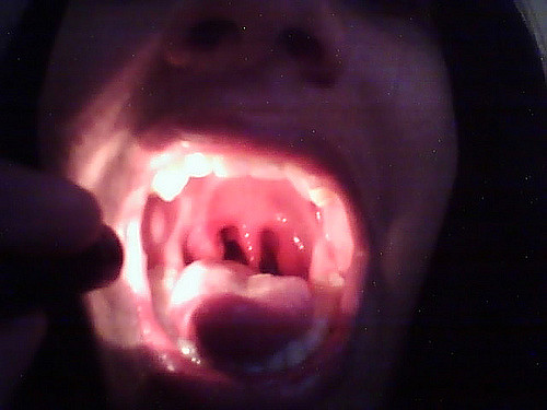 tonsillitis pictures photos