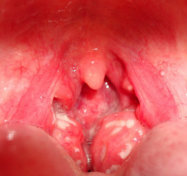 tonsillitis pictures and images